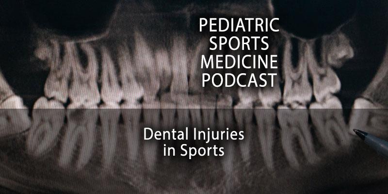 Dental Injuries in Sports
